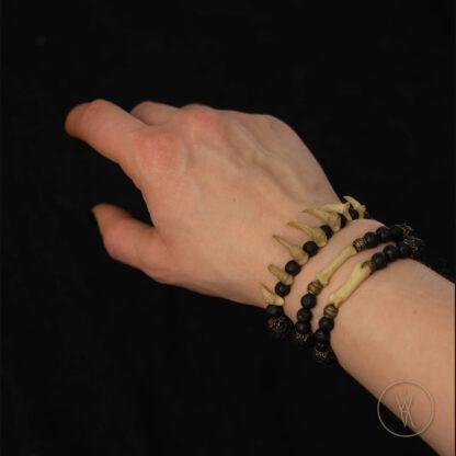 ⋮ Zerfetzer ⋮ Bracelet (size XXS or XXL)